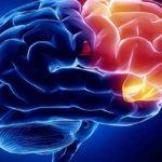 Sapņu tulks smadzenes
