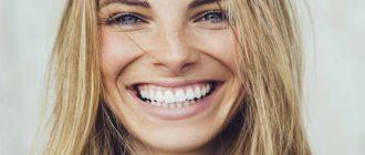 Sapņu tulks smaids
